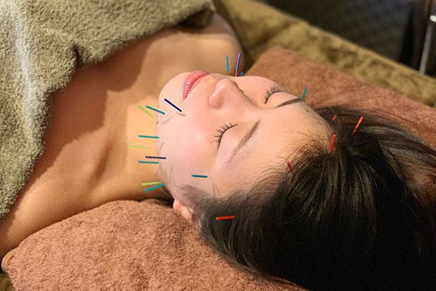 美容鍼灸写真|Studio PROUDY|くりた鍼灸整骨院
